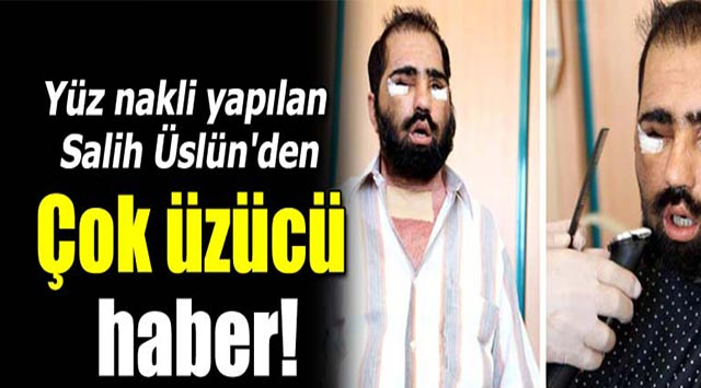 tekirdağ Yüz Nakli Olan Edirneli Salih üstün'den Kötü Haber
