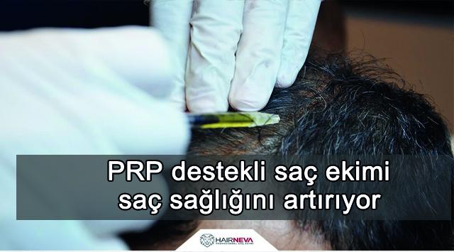 tekirdağ Prp Destekli Saç Ekimi Saç Sağlığını Artırıyor